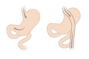 maost möödajuhtiv operatsioon gastric bypass