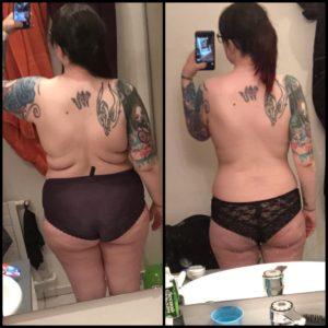 Enne ja pärast maovähendusoperatsiooni